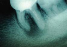 Зуб 37 до лечения