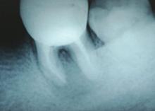 Рентгенограмма через 12 месяцев после постоянной обтурации