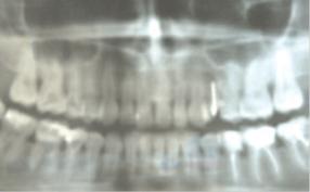Деструкция в области зуба 24