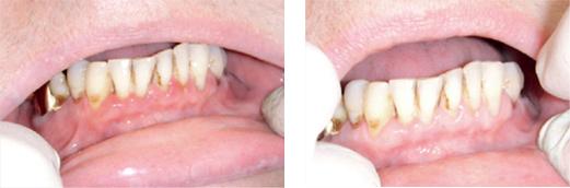 Фотография до и после лечения