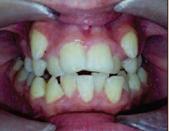 Аномалия прикуса и скученное положение зубов