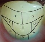 Ориентировочная схема деления поверхности зуба для определения индекса RMNPI