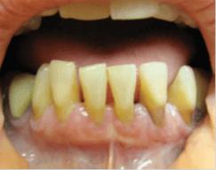 Состояние тканей маргинального пародонта после профессиональной гигиены полости рта и 5 дней аппликации Метрогил Дента
