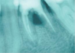 После удаления зуба 37 необходимо проведение профилактики постэкстракционного альвеолита