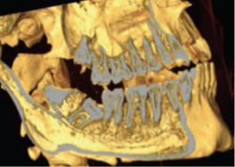 Аномалия положения зуба 48